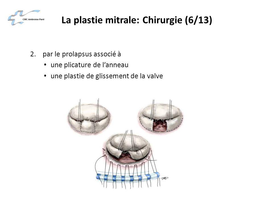 La plastie mitrale: Chirurgie (6/13) 2. par le prolapsus associé à une plicature de lanneau une plastie de glissement de la valve