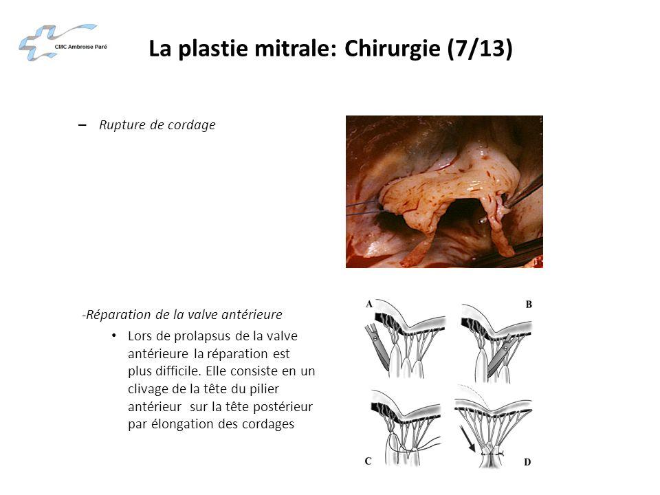 La plastie mitrale: Chirurgie (7/13) – Rupture de cordage -Réparation de la valve antérieure Lors de prolapsus de la valve antérieure la réparation es