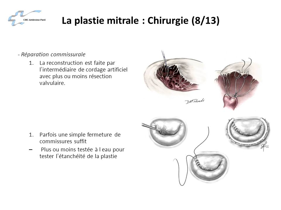 La plastie mitrale : Chirurgie (8/13) - Réparation commissurale 1.La reconstruction est faite par lintermédiaire de cordage artificiel avec plus ou mo