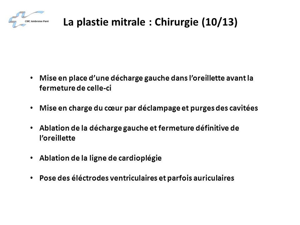 La plastie mitrale : Chirurgie (10/13) Mise en place dune décharge gauche dans loreillette avant la fermeture de celle-ci Mise en charge du cœur par d