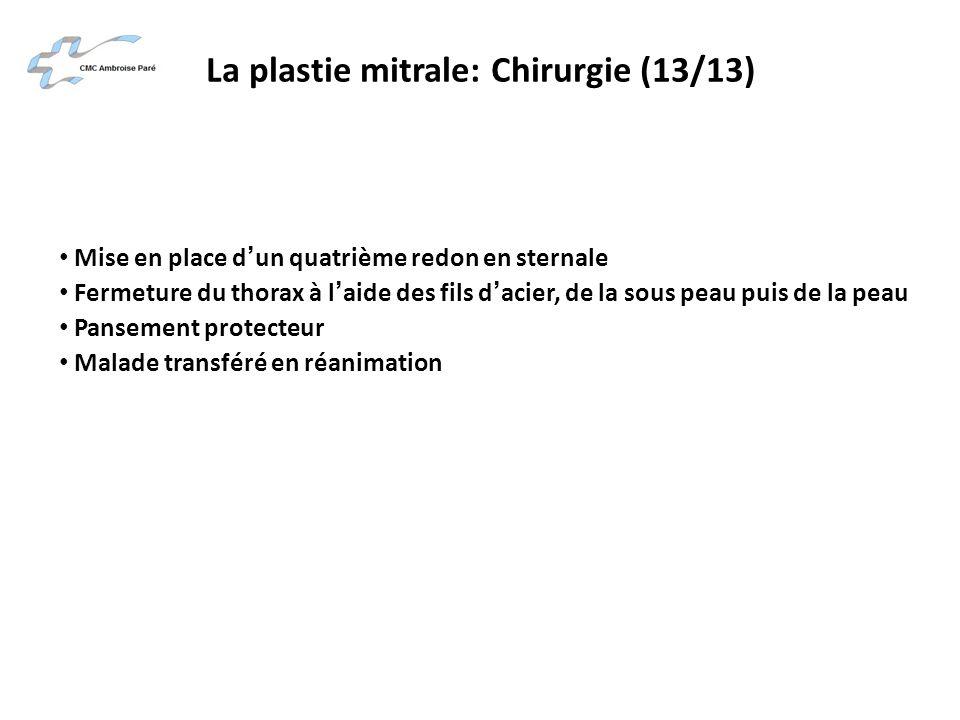 La plastie mitrale: Chirurgie (13/13) Mise en place dun quatrième redon en sternale Fermeture du thorax à laide des fils dacier, de la sous peau puis