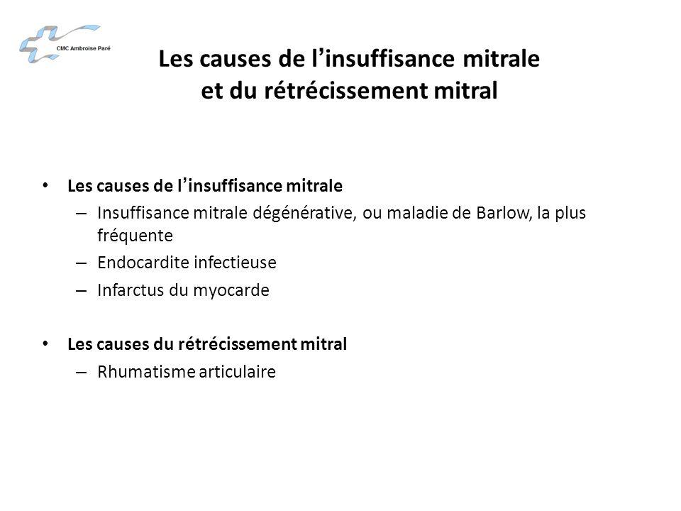 Les causes de linsuffisance mitrale et du rétrécissement mitral Les causes de linsuffisance mitrale – Insuffisance mitrale dégénérative, ou maladie de