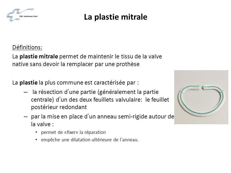 La plastie mitrale Définitions: La plastie mitrale permet de maintenir le tissu de la valve native sans devoir la remplacer par une prothèse La plasti