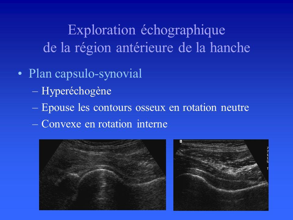 Exploration échographique de la région antérieure de la hanche Coupe de référence –Hanche en position neutre –Coupe longitudinale sur la face antérieu