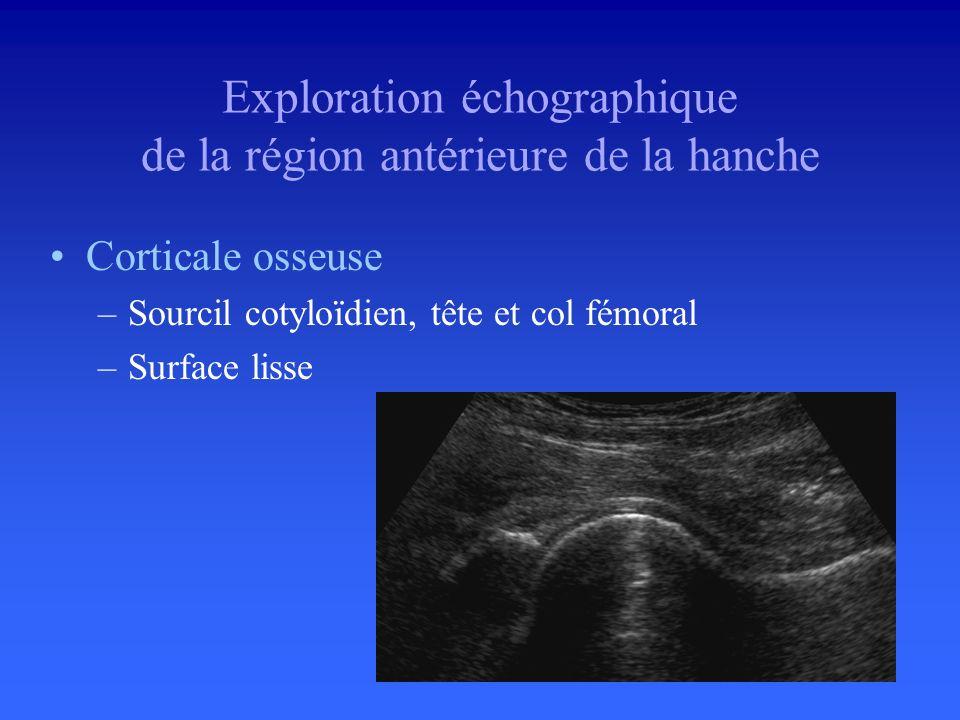 Labrum –Portion antérieure –Triangulaire –Hyperéchogène –Homogène Exploration échographique de la région antérieure de la hanche