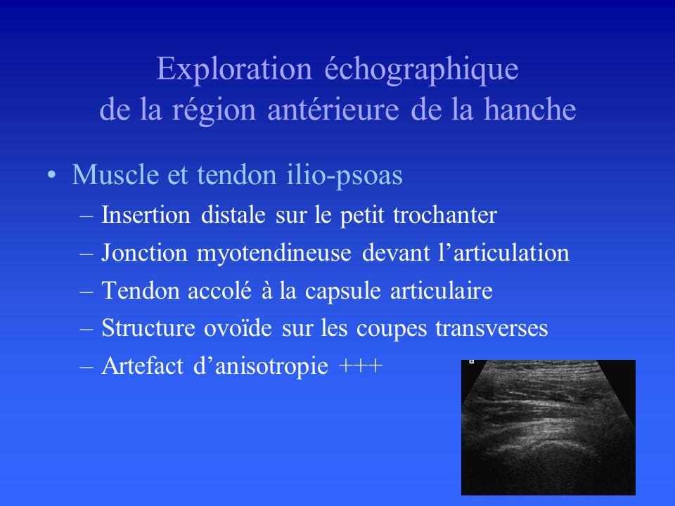 Cartilage articulaire –Mince bande anéchogène –Samincit à la périphérie Exploration échographique de la région antérieure de la hanche