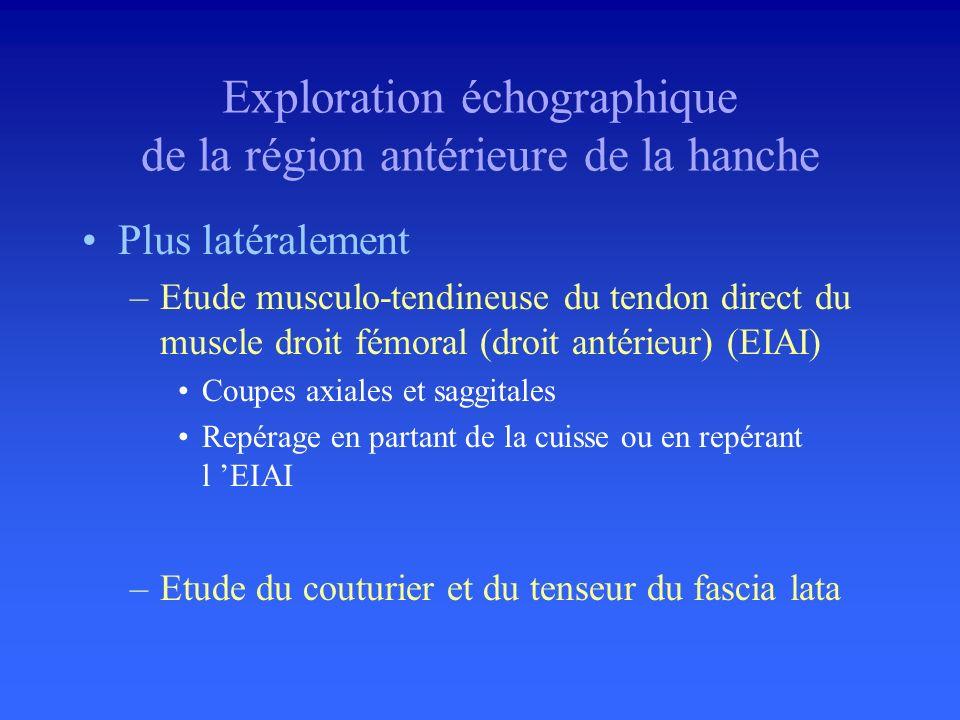 Muscle et tendon ilio-psoas –Insertion distale sur le petit trochanter –Jonction myotendineuse devant larticulation –Tendon accolé à la capsule articu