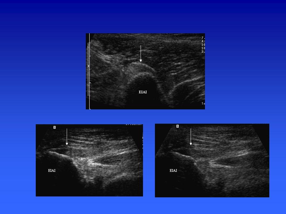 Plus latéralement –Etude musculo-tendineuse du tendon direct du muscle droit fémoral (droit antérieur) (EIAI) Coupes axiales et saggitales Repérage en