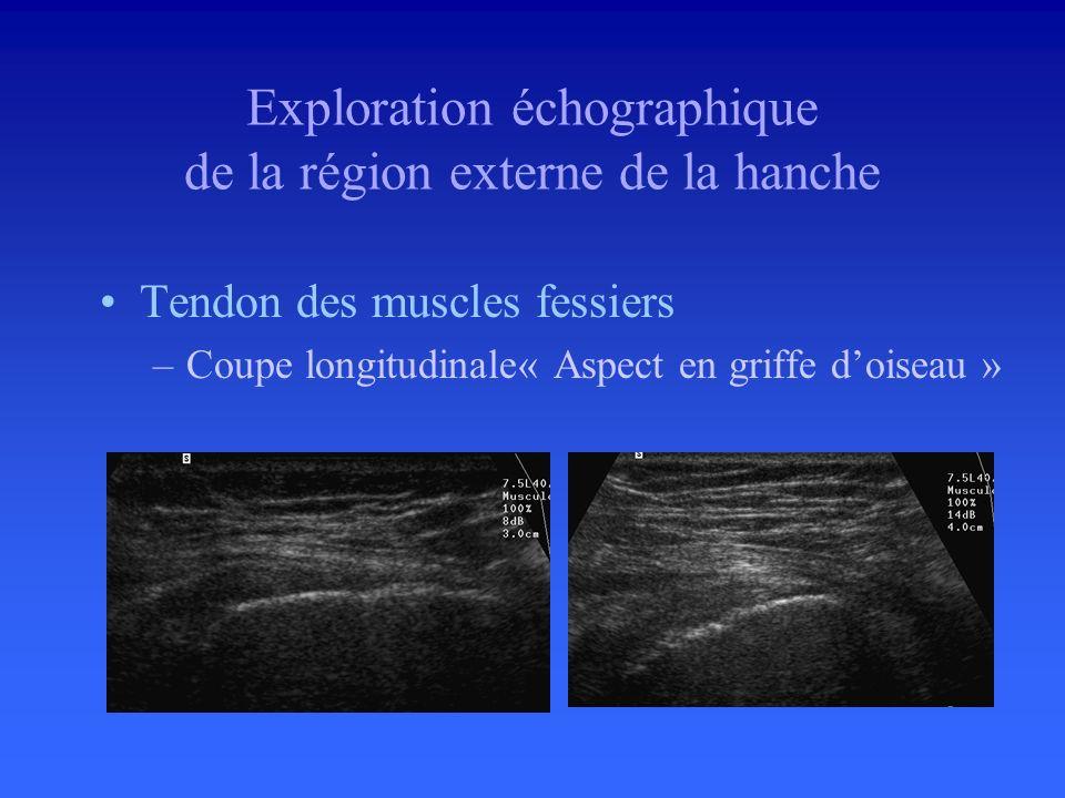 Tendon des muscles fessiers –Coupes axiales: Repérage du grand trochanter Repérage insertions tendineuses sur le grand trochanter –Artefact danisotrop