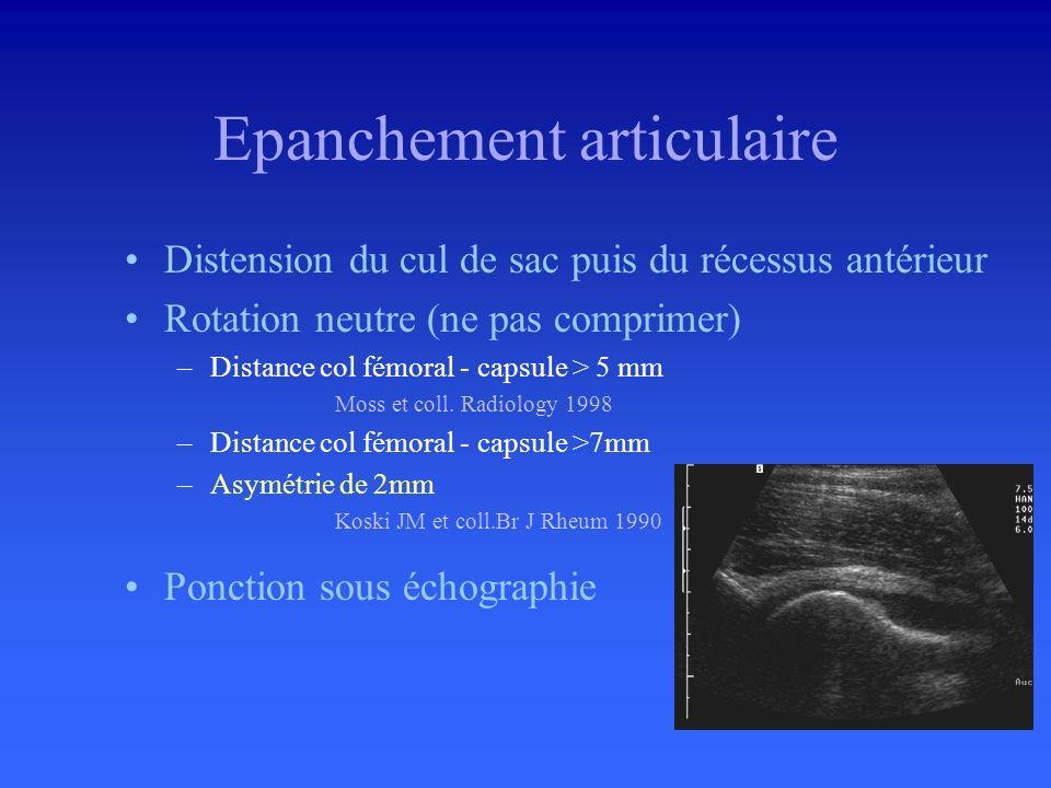 Grande sensibilité de léchographie –Injection de 1 ml dans la hanche = distension de 1mm en échographie. » Marschal et coll. Radiology 1987 –Distensio