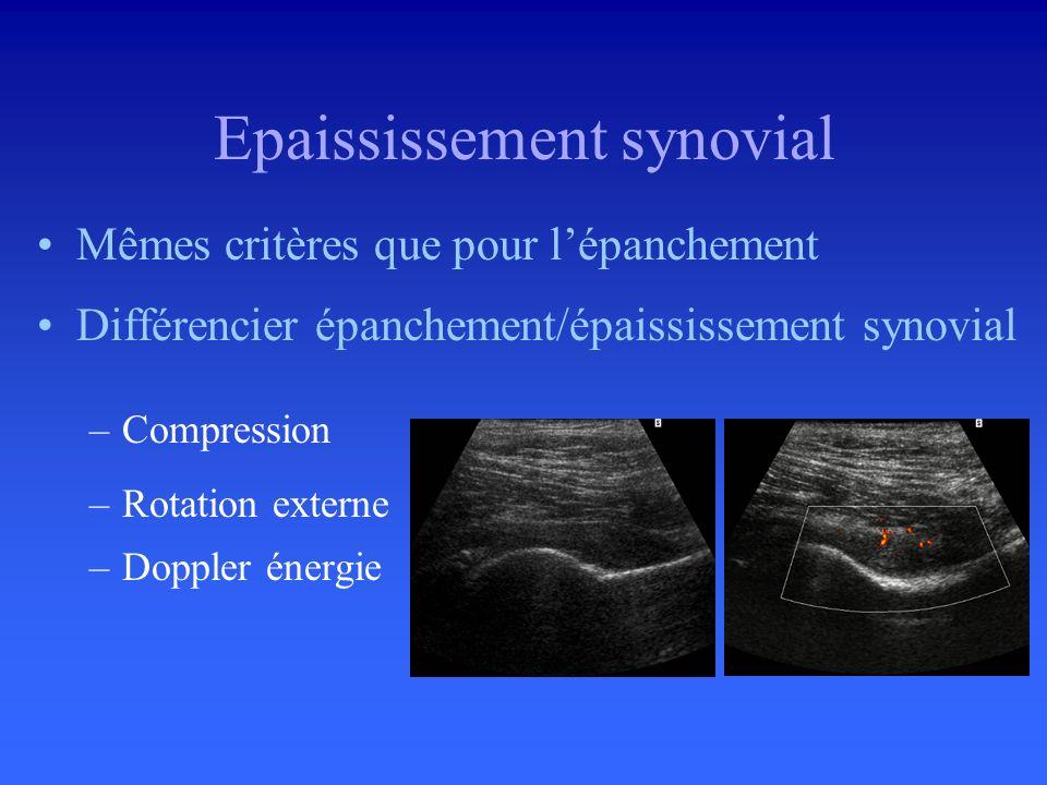 Distension du cul de sac puis du récessus antérieur Rotation neutre (ne pas comprimer) –Distance col fémoral - capsule > 5 mm Moss et coll. Radiology