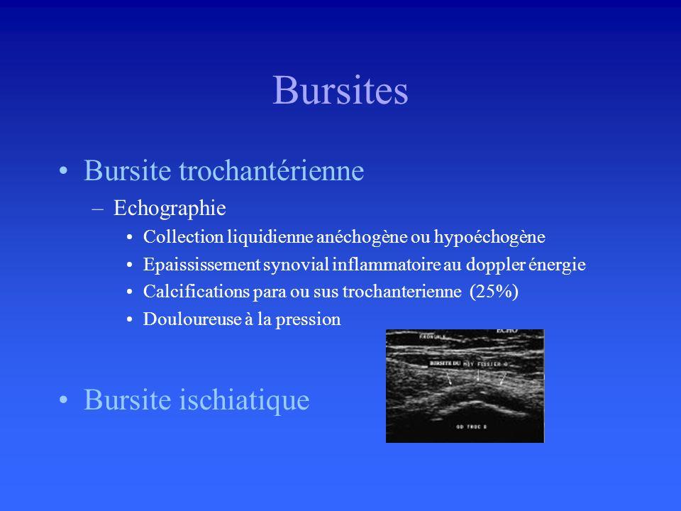 Labrum acétabulaire