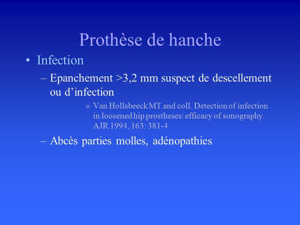 Tendon direct du droit antérieur Douleur inguinale (Pb diagnostic) Enthésopathie Insertion EEIAS Epaississement hypoéchogène, calcifications, irrégula