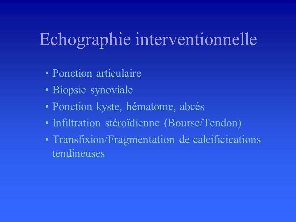 Conflit prothèse-psoas –Cupule prothétique/Psoas –Collet prothèse/Psoas –Echographie dynamique Prothèse de hanche
