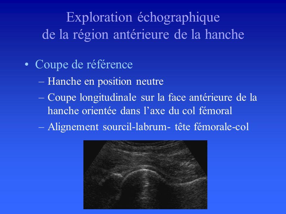 Décubitus, hanche en extension Positionnement identique des hanches Examen bilatéral et comparatif Sonde linéaire 7 Mhz ou convexe 5 Mhz Artefact dani