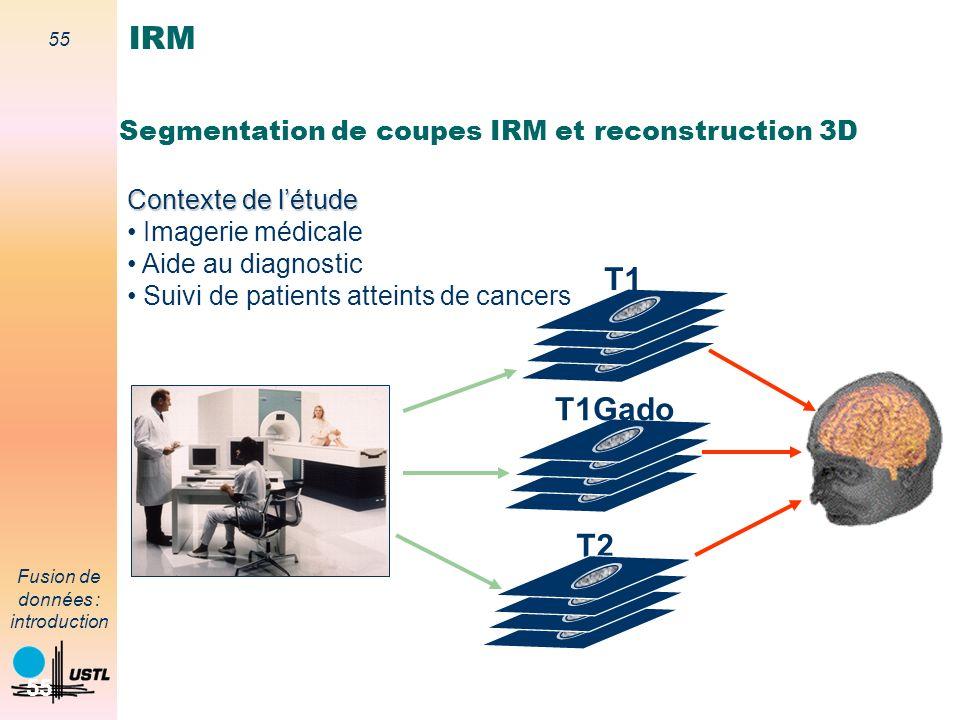 55 Fusion de données : introduction 55 Segmentation de coupes IRM et reconstruction 3D T2 T1 T1Gado Contexte de létude Imagerie médicale Aide au diagn