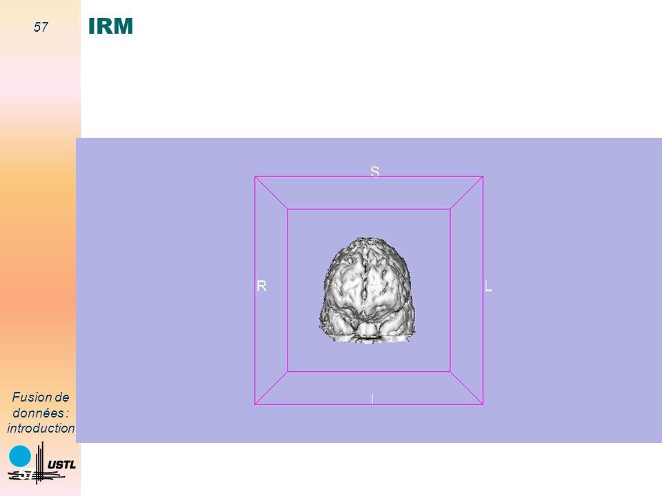 57 Fusion de données : introduction 57 IRM