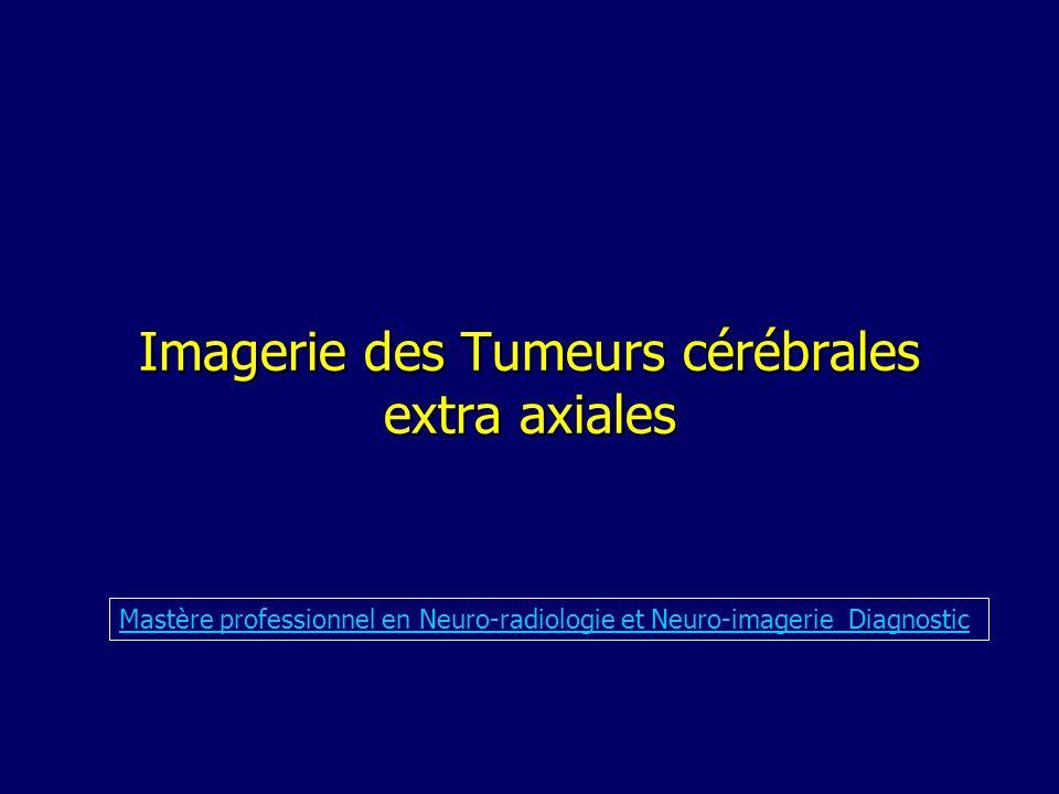 Méningiomes IRM, détermine les rapports avec les structures adjacentes, vasculaires: séquences AngioMR (2DTOF, 3DTOF ) recherche dautres localisations ou des lésions associées: NF2