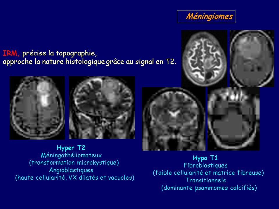 Méningiomes IRM, précise la topographie, approche la nature histologique grâce au signal en T2.