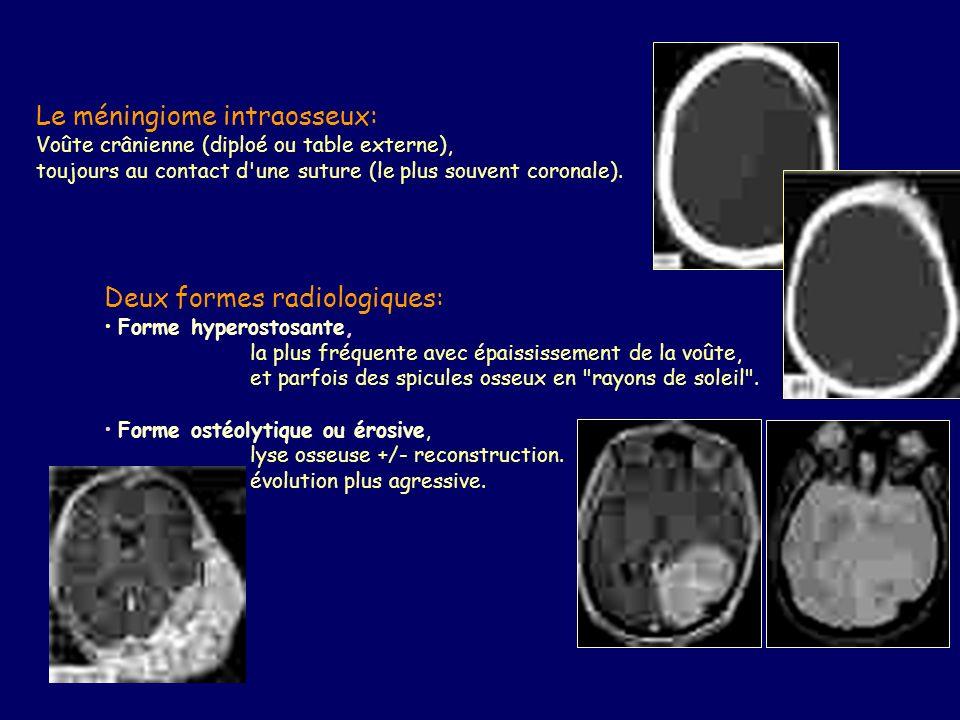 Le méningiome intraosseux: Voûte crânienne (diploé ou table externe), toujours au contact d une suture (le plus souvent coronale).