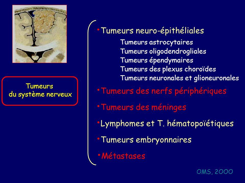 50 ans, HTIC et Syndrome frontal TDM: Processus expansif frontal G Métastase dun ADK