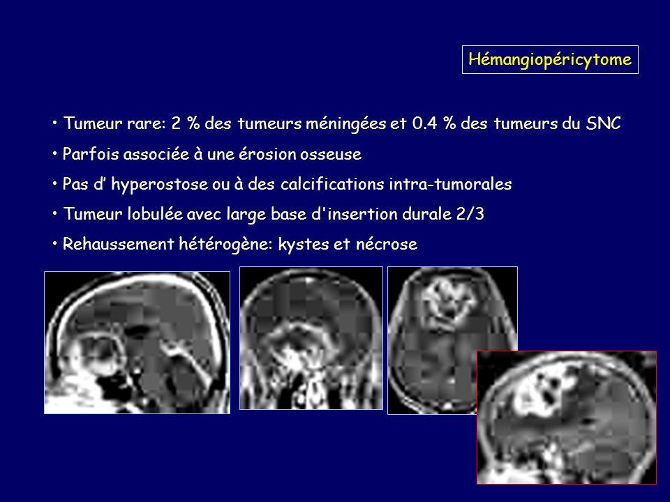 Hémangiopéricytome Tumeur rare: 2 % des tumeurs méningées et 0.4 % des tumeurs du SNC Parfois associée à une érosion osseuse Pas d hyperostose ou à des calcifications intra-tumorales Tumeur lobulée avec large base d insertion durale 2/3 Rehaussement hétérogène: kystes et nécrose