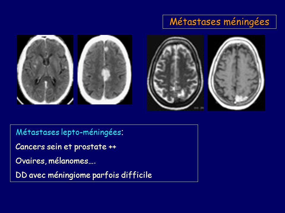 Métastases méningées Métastases lepto-méningées : Cancers sein et prostate ++ Ovaires, mélanomes….