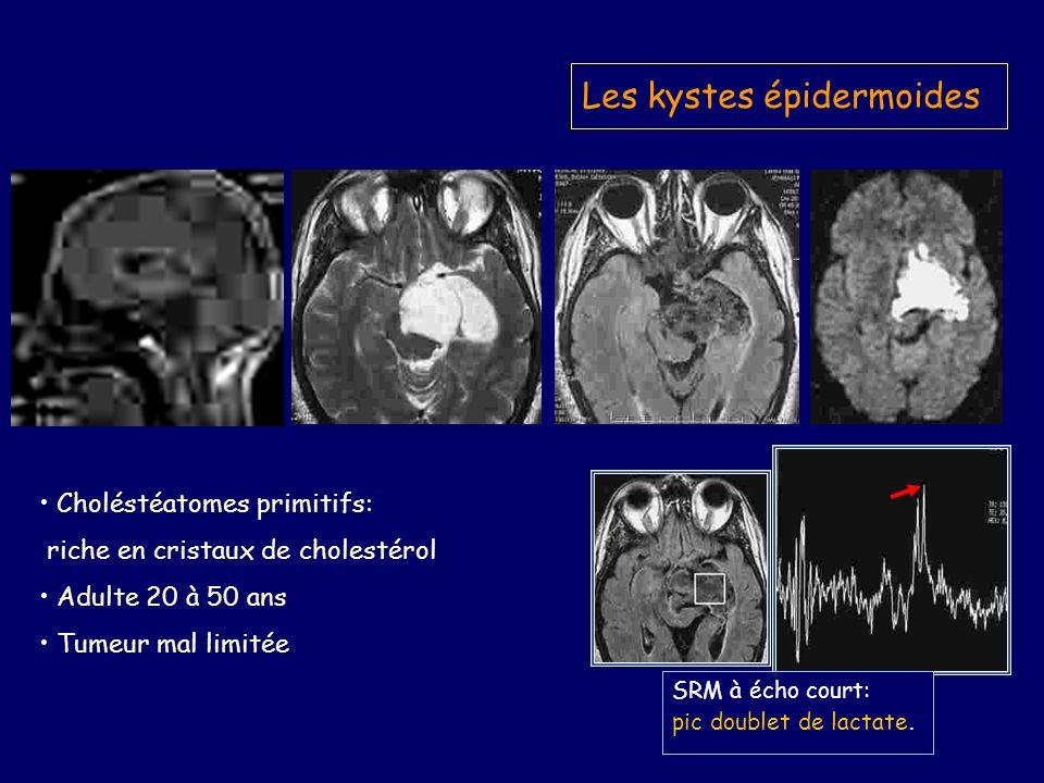 Les kystes épidermoides SRM à écho court: pic doublet de lactate.