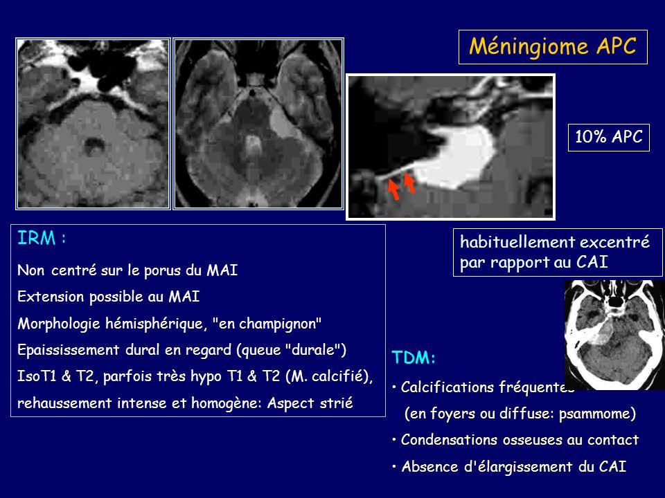 Méningiome APC TDM: Calcifications fréquentes (en foyers ou diffuse: psammome) Condensations osseuses au contact Absence d élargissement du CAI IRM : Non centré sur le porus du MAI Extension possible au MAI Morphologie hémisphérique, en champignon Epaississement dural en regard (queue durale ) IsoT1 & T2, parfois très hypo T1 & T2 (M.