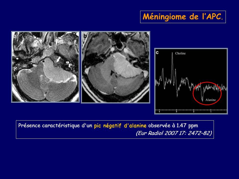 Présence caractéristique d un pic négatif d alanine observée à 1.47 ppm (Eur Radiol 2007 17: 2472–82) Méningiome de lAPC.