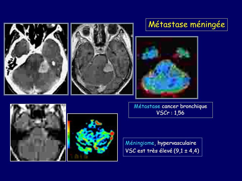 Métastase méningée Métastase cancer bronchique VSCr : 1,56 Méningiome, hypervasculaire VSC est très élevé (9,1 ± 4,4)