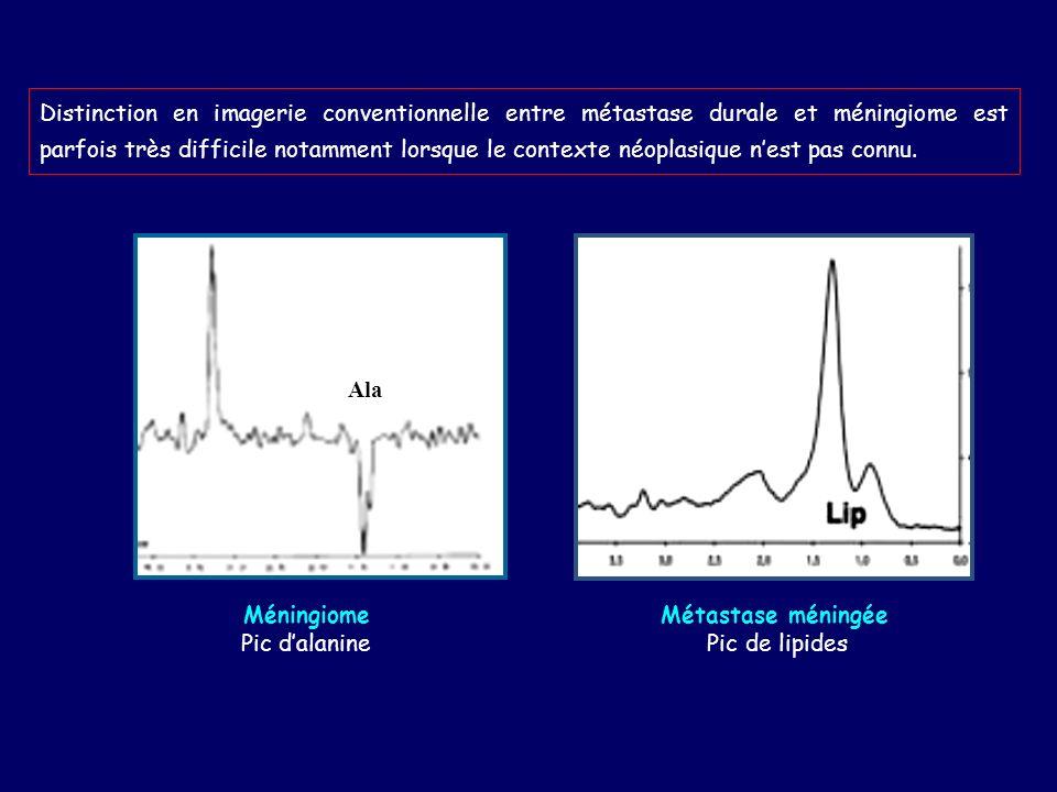 Distinction en imagerie conventionnelle entre métastase durale et méningiome est parfois très difficile notamment lorsque le contexte néoplasique nest pas connu.