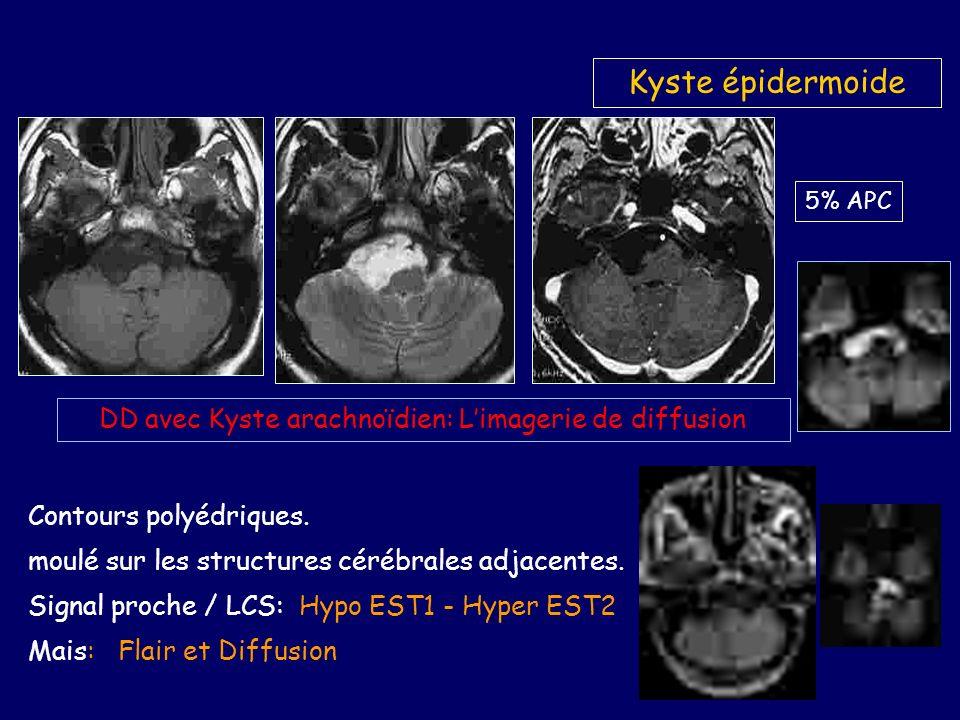 Kyste épidermoide DD avec Kyste arachnoïdien: Limagerie de diffusion 5% APC Contours polyédriques.