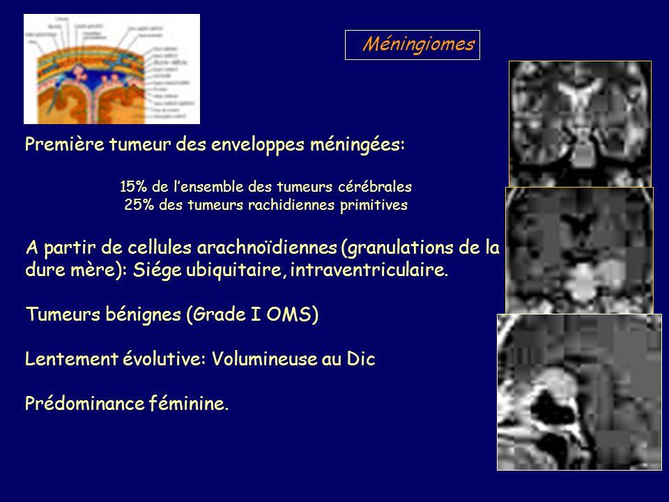 Première tumeur des enveloppes méningées: 15% de lensemble des tumeurs cérébrales 25% des tumeurs rachidiennes primitives A partir de cellules arachnoïdiennes (granulations de la dure mère): Siége ubiquitaire, intraventriculaire.