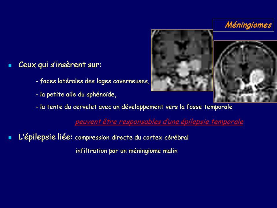 Ceux qui sinsèrent sur: - faces latérales des loges caverneuses, - la petite aile du sphénoïde, - la tente du cervelet avec un développement vers la fosse temporale peuvent être responsables dune épilepsie temporale Lépilepsie liée: compression directe du cortex cérébral infiltration par un méningiome malin Méningiomes