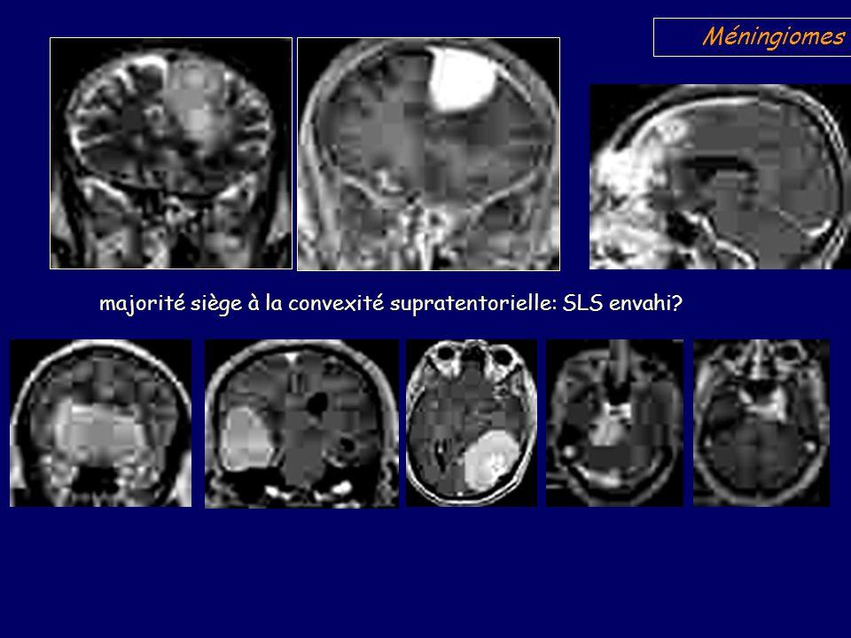 PEIC spontanément isodense au cortex Rehaussement intense, hétérogène zone nécrose centrale Base d implantation sur la convexité frontale Hyperostose irrégulière.