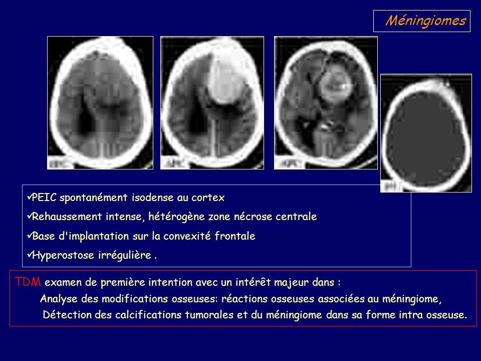 IRM, pose le diagnostic de méningiome devant Siége extra-axial Base dimplantation méningée, Rehaussement de la lésion Signe de la « queue durale ».