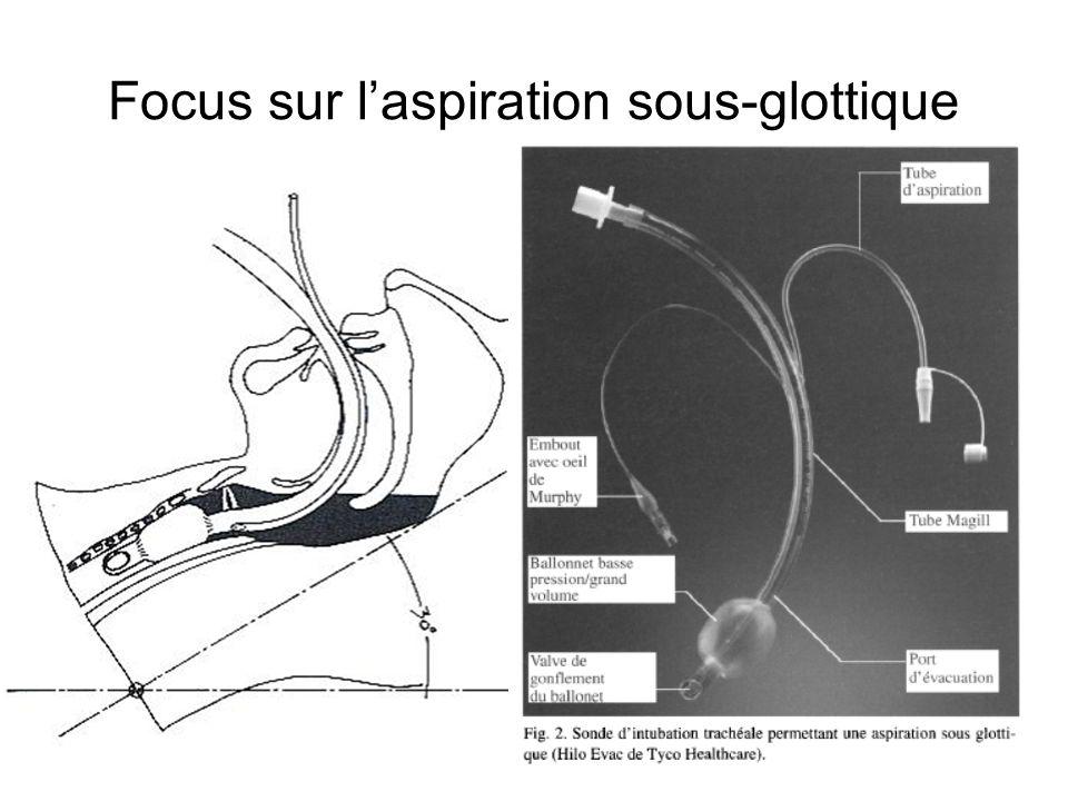 Focus sur laspiration sous-glottique