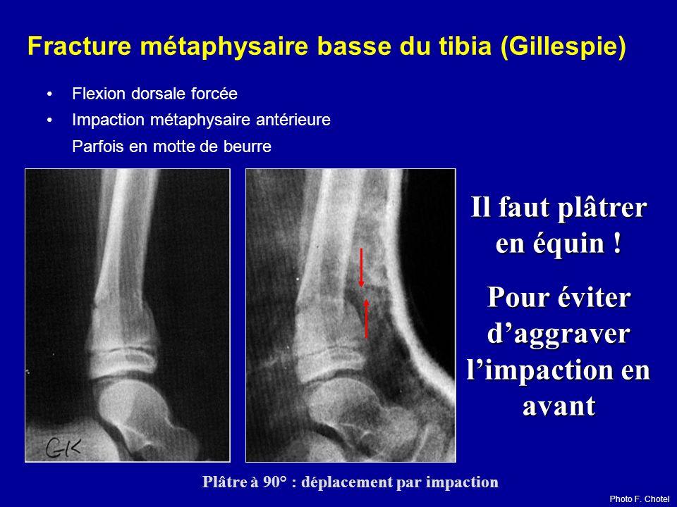 Fracture métaphysaire basse du tibia (Gillespie) Flexion dorsale forcée Impaction métaphysaire antérieure Parfois en motte de beurre Il faut plâtrer e