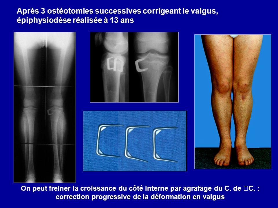 On peut freiner la croissance du côté interne par agrafage du C. de C. : correction progressive de la déformation en valgus Après 3 ostéotomies succes