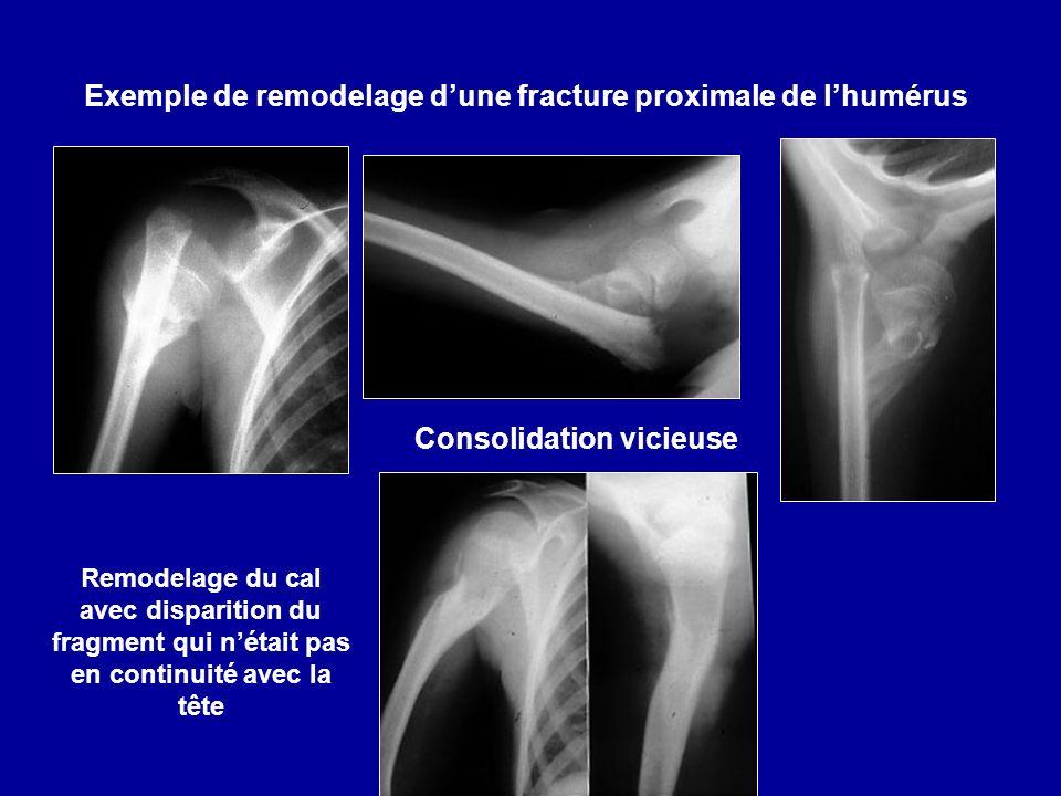 Exemple de remodelage dune fracture proximale de lhumérus Consolidation vicieuse Remodelage du cal avec disparition du fragment qui nétait pas en continuité avec la tête