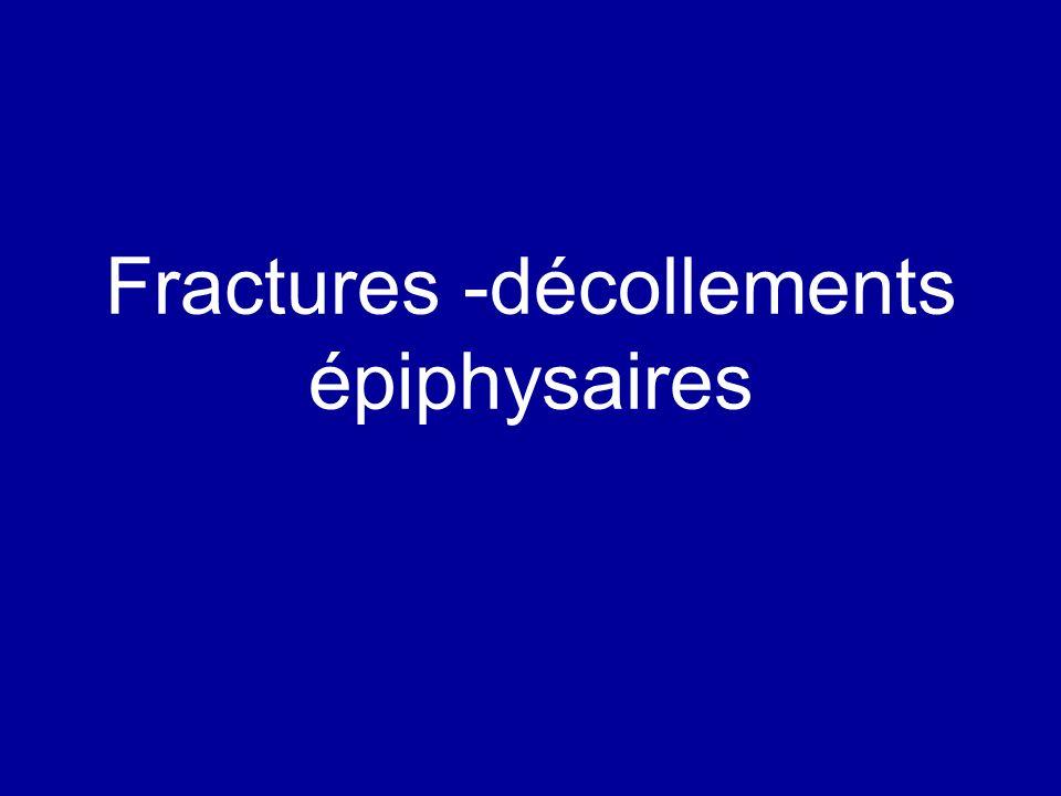 Fractures -décollements épiphysaires