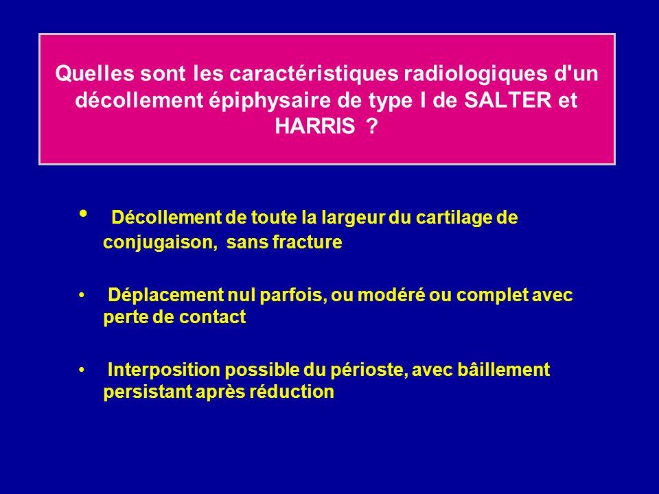 Quelles sont les caractéristiques radiologiques d'un décollement épiphysaire de type I de SALTER et HARRIS ? Décollement de toute la largeur du cartil