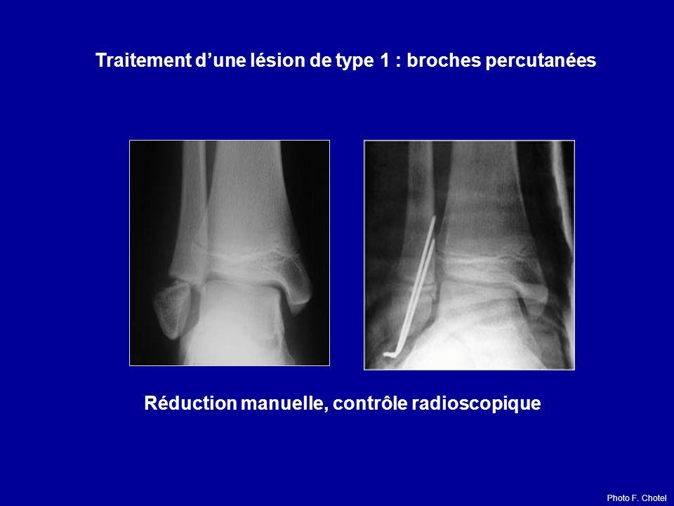 Traitement dune lésion de type 1 : broches percutanées Réduction manuelle, contrôle radioscopique Photo F.