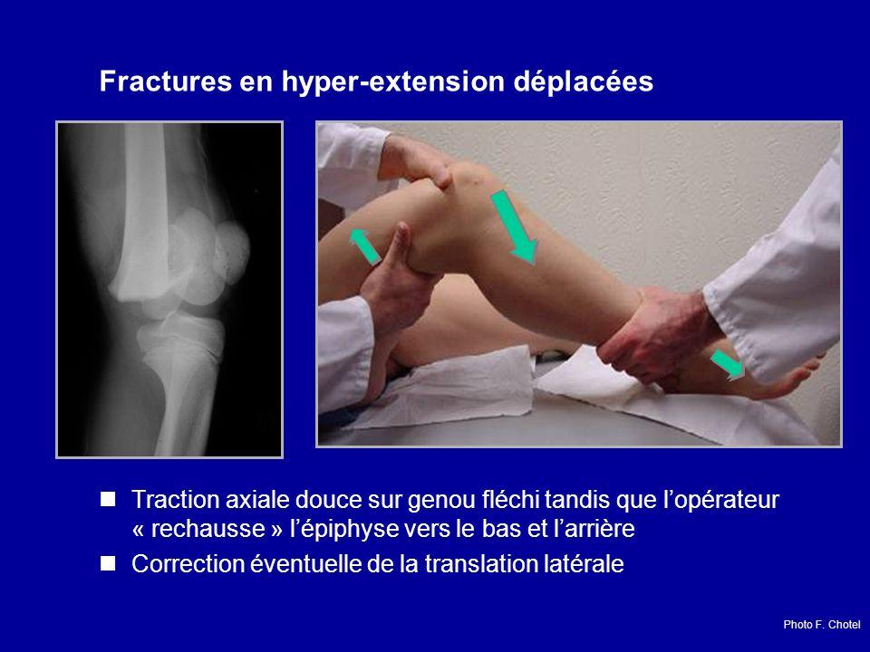 Traction axiale douce sur genou fléchi tandis que lopérateur « rechausse » lépiphyse vers le bas et larrière Correction éventuelle de la translation latérale Fractures en hyper-extension déplacées Photo F.