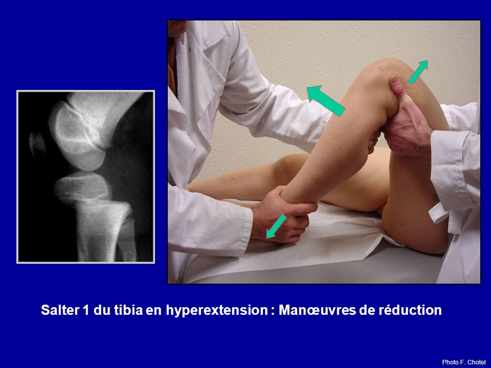 Salter 1 du tibia en hyperextension : Manœuvres de réduction Photo F. Chotel