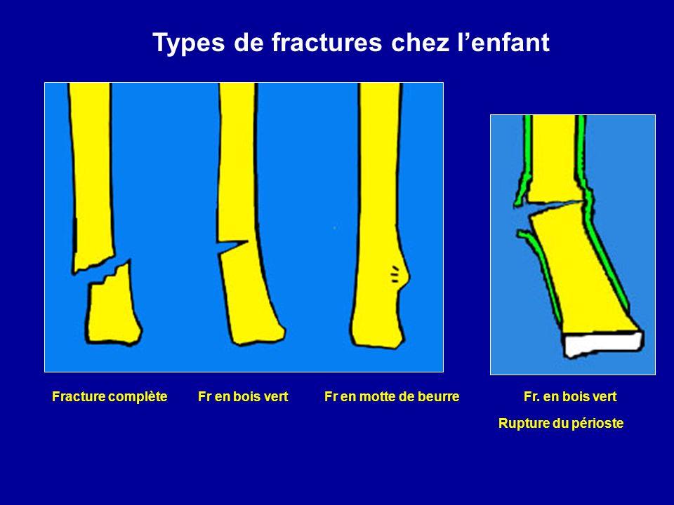 Fracture complète Fr en bois vert Fr en motte de beurre Fr. en bois vert Rupture du périoste Types de fractures chez lenfant