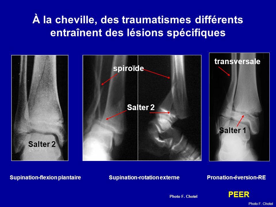 Supination-flexion plantaire Supination-rotation externe Pronation-éversion-RE À la cheville, des traumatismes différents entraînent des lésions spécifiques Salter 1 Salter 2 spiroïde transversale PEER Photo F.