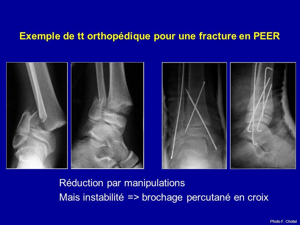 Réduction par manipulations Mais instabilité => brochage percutané en croix Exemple de tt orthopédique pour une fracture en PEER Photo F. Chotel