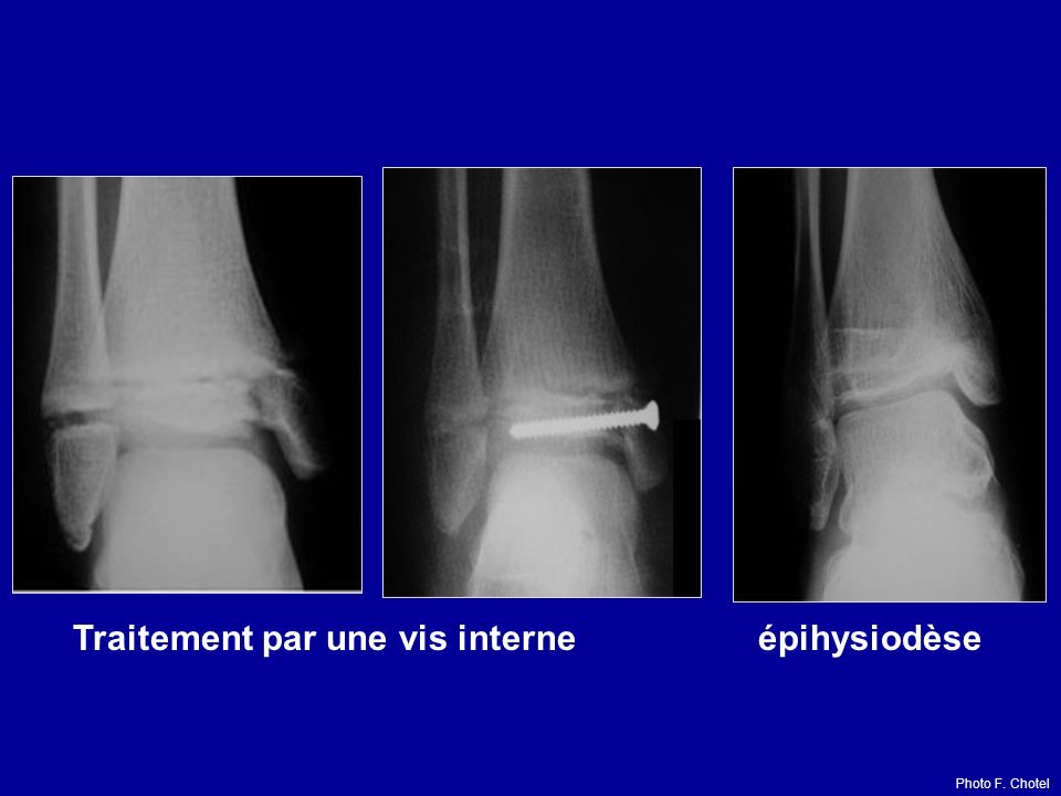Traitement par une vis interne épihysiodèse Photo F. Chotel